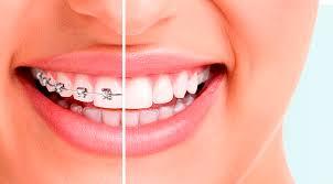 ortodoncia - braquets metálicos