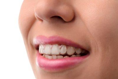 ortodoncia invisible - braquets