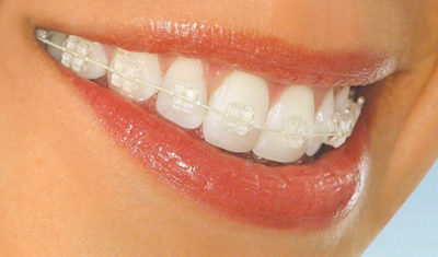 ortodoncia zafiro - braquets