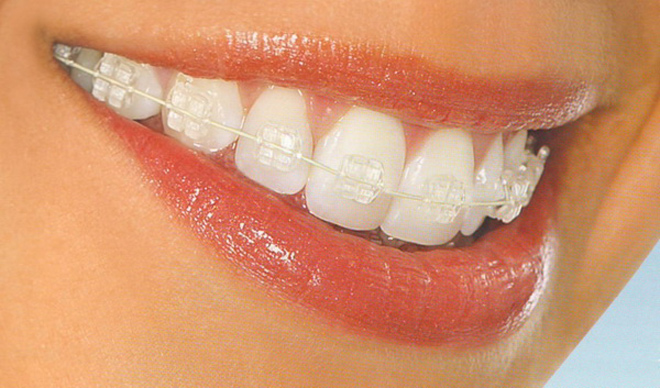 Estética dental Sitges Barcelona
