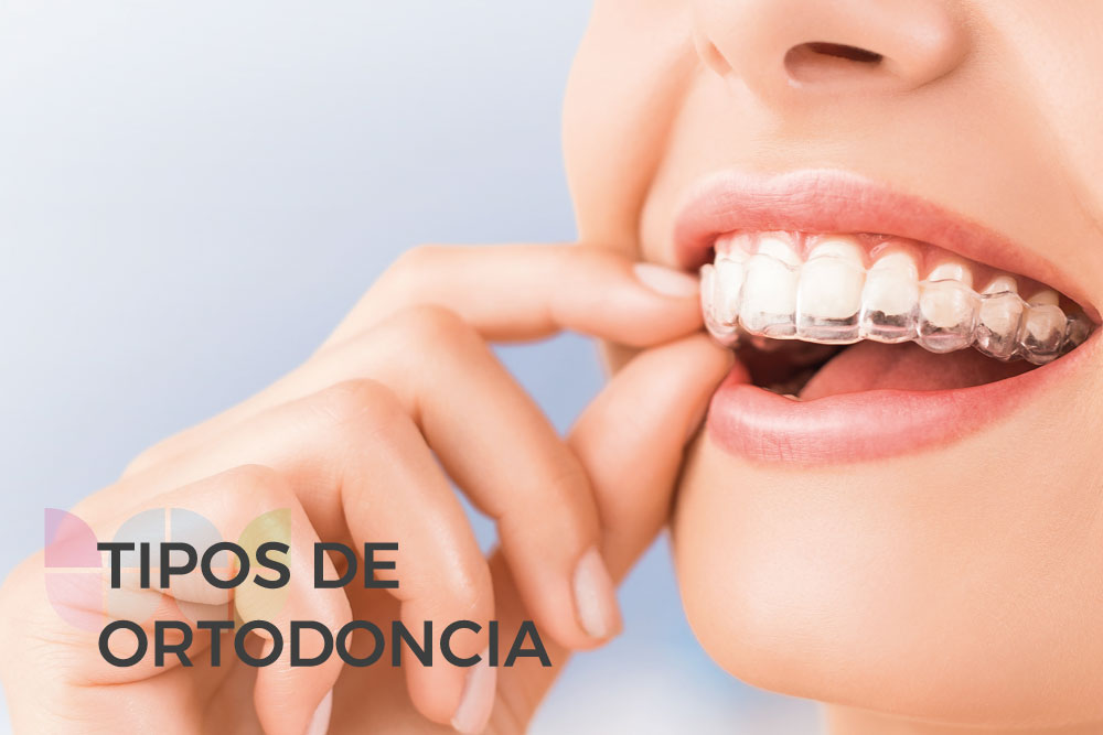 Diferentes tipos de ortodoncia